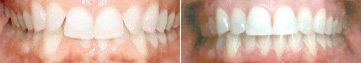 invisalign-before-after-nj-4